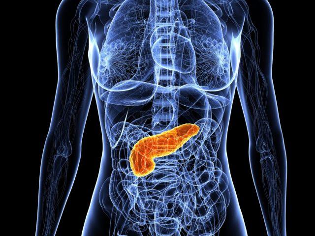 Что вы должны знать о панкретите. Острый и хронический панкреатит